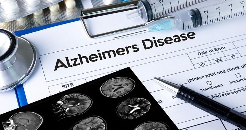 Alzheimers Disease Concept , Brain Degenerative Diseases Parkins
